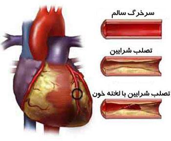 علل گرفتگی عروق قلب