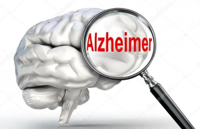 تمایز تغییرات ناشی از افزایش سن با علائم دمانس
