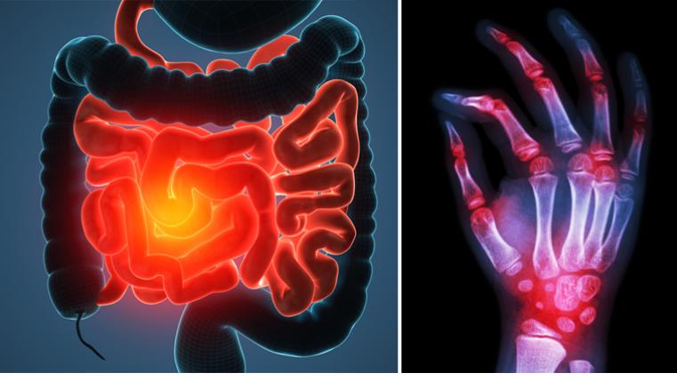 رابطه بیماری های خود ایمنی با عفونت ، شرایط محیطی ، تغذیه و فلور روده ها